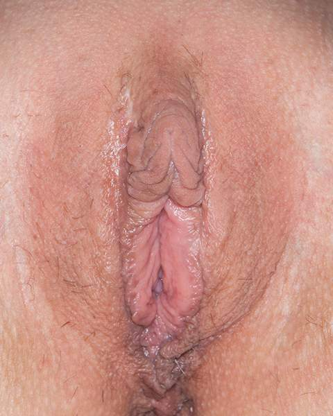 big fat labia