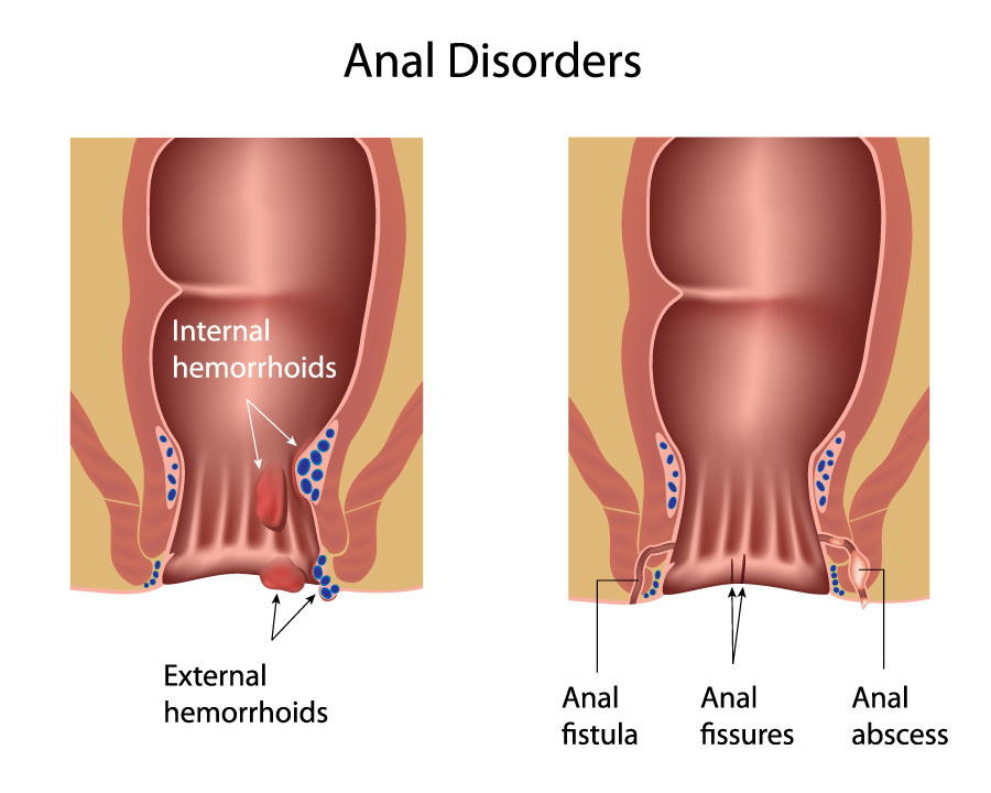 ulcer acute fissure anal