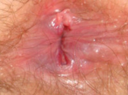 discharge anal fissure