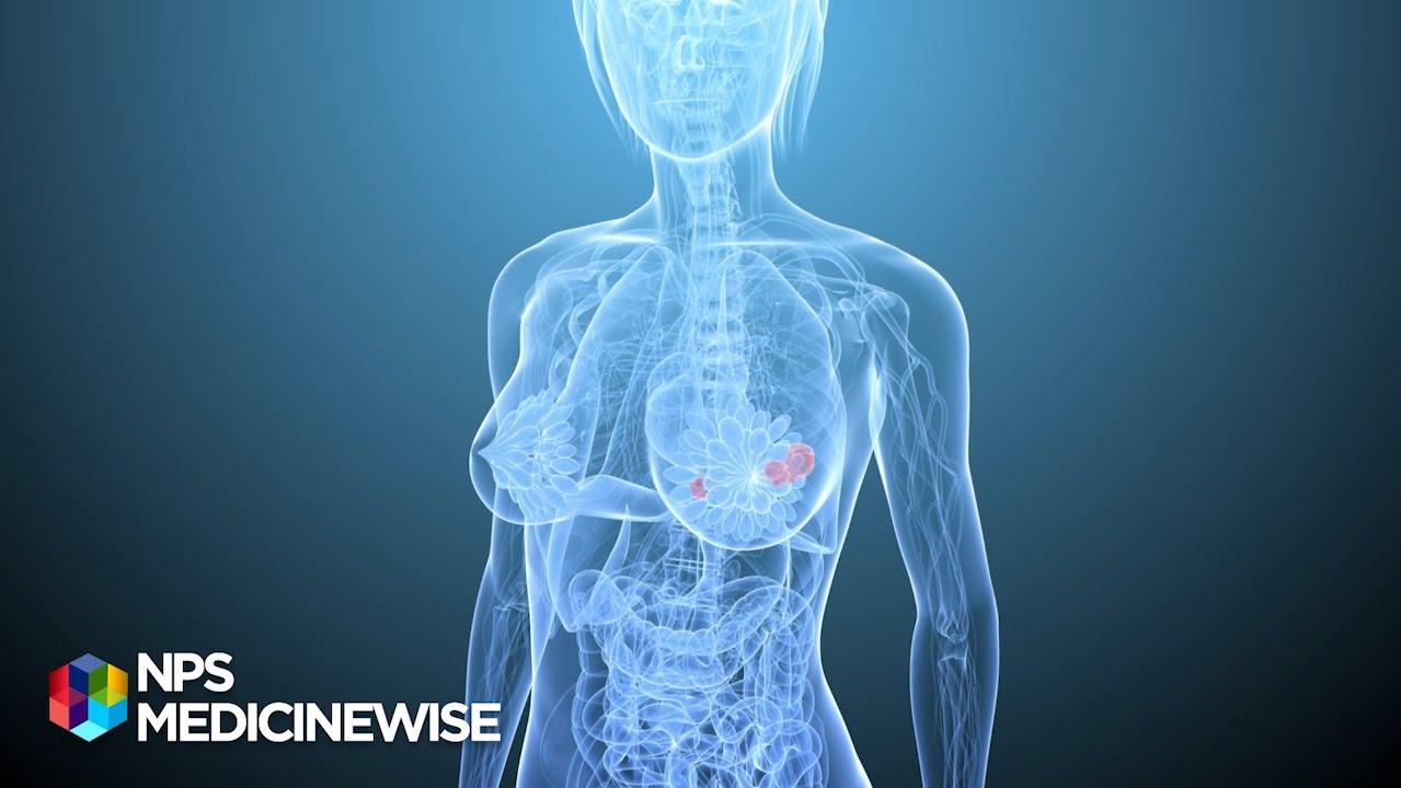 growth breast hormones bioidentical