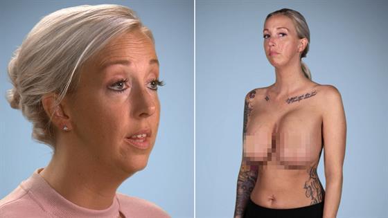 inplants gone breast