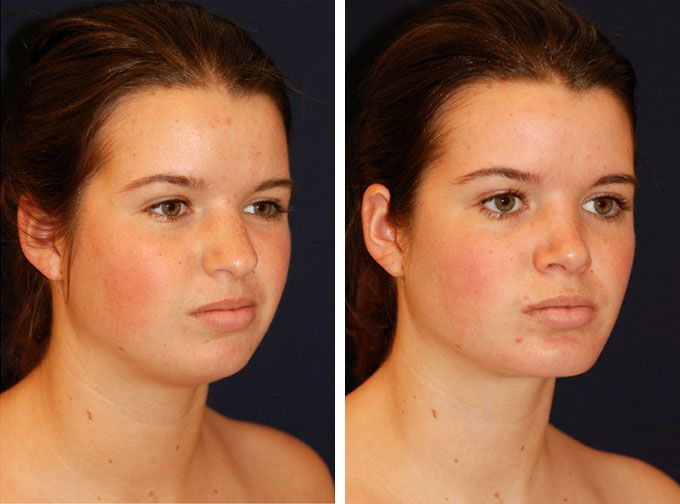 implants pictures facial