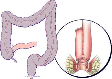 ileo anal pouch