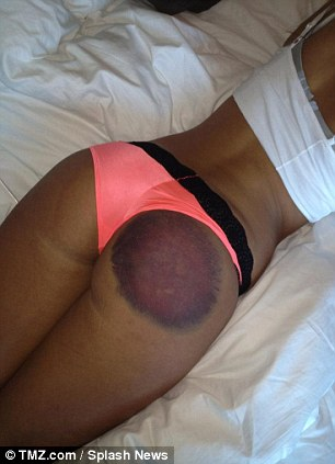 ass brused and welted