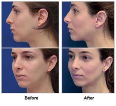 feminization frederick surgery facial