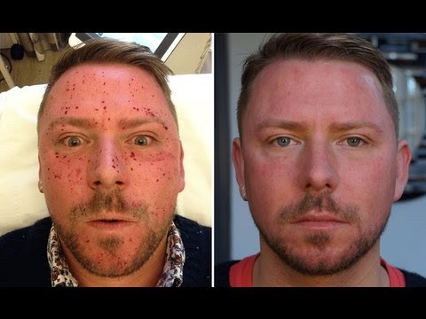 treatment facial lazor