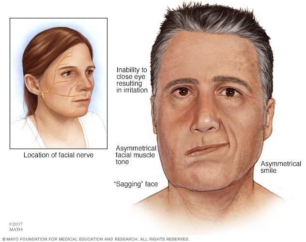 tone facial muscle