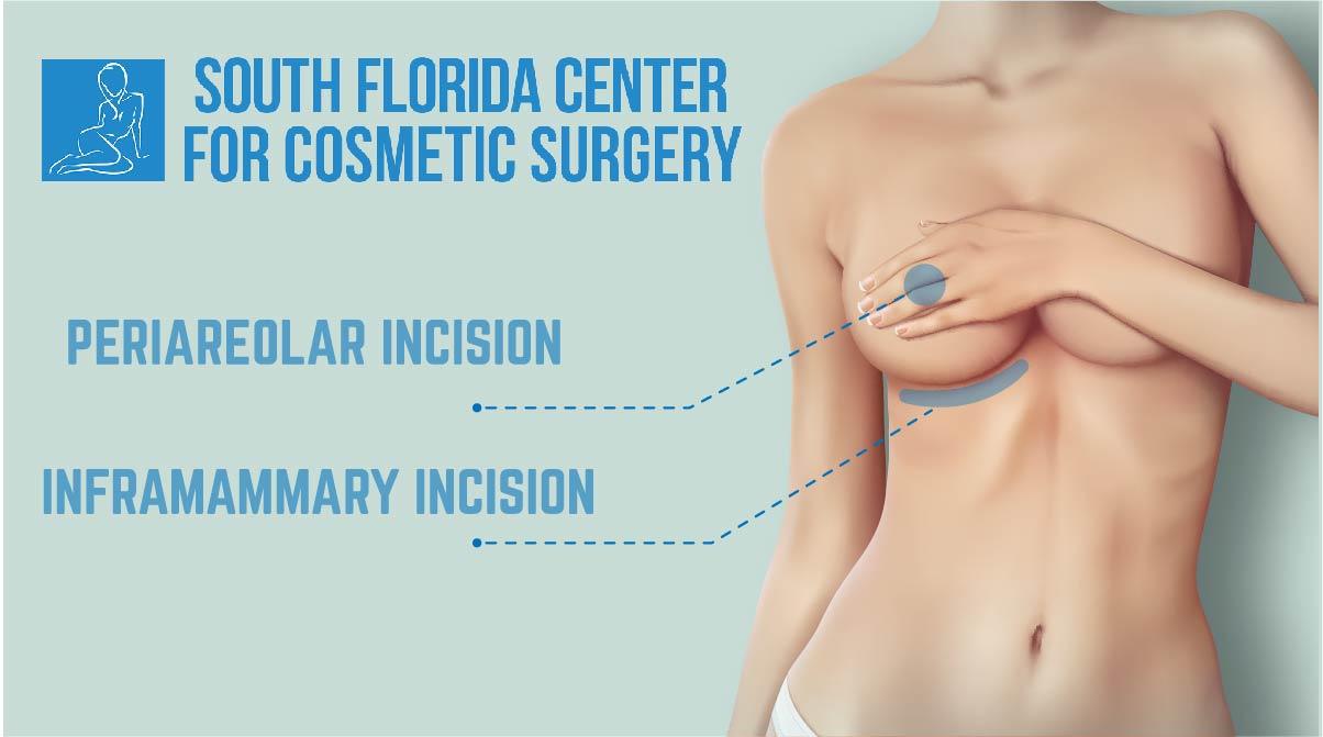 augmentation breast florida in