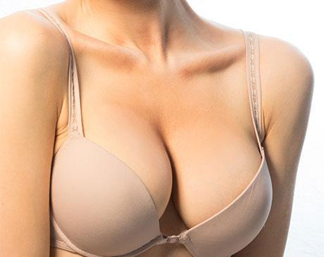with breast uplift implants