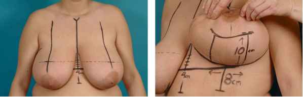 surgery reduction breast spair