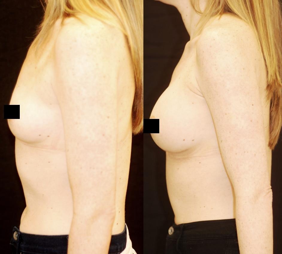 implants manhattan silicone breast