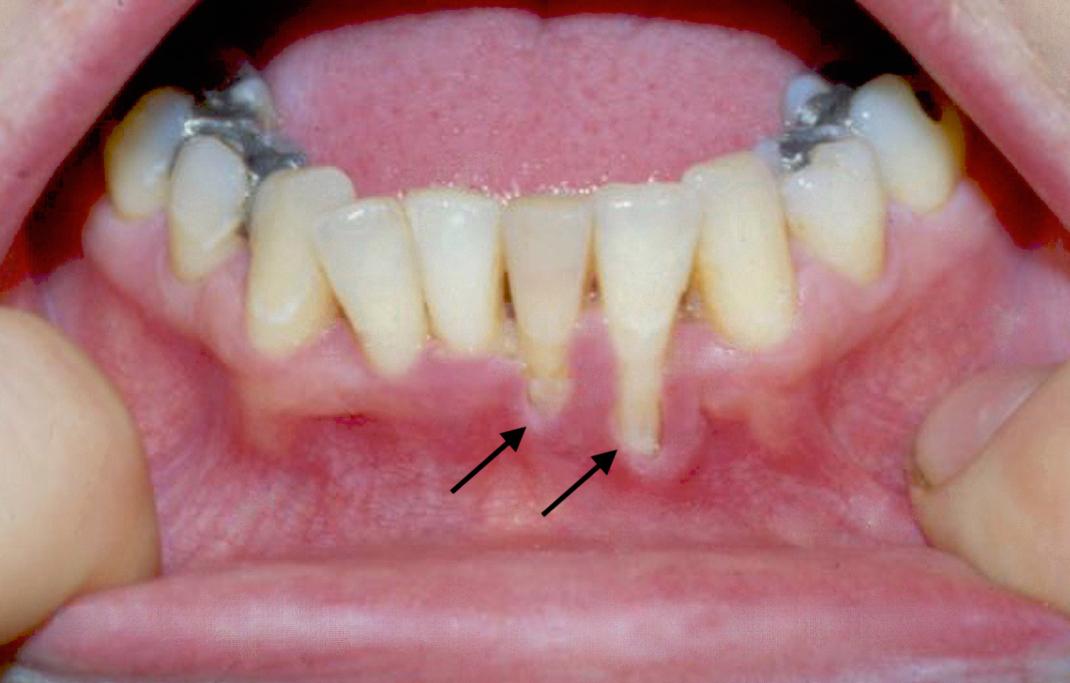 sex gum and oral disease