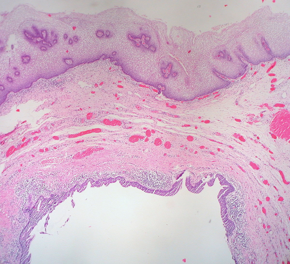 uclear vaginal of picture